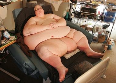 世界首胖减肥584斤 曾重达888斤感到羞愧