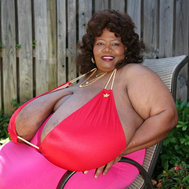 盘点乳房太大对女人带来的健康危害